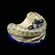 Ferula-Anti-Ronquidos-con-resorte-metalico-vista-tres-cuartos-ProtesisSA-Laboratorio-Protesis-Dentales