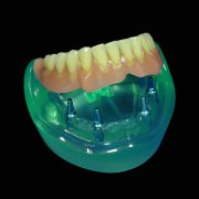 Implante-SobreDentadura-2-ProtesisSA-Laboratorio-Protesis-Dentales