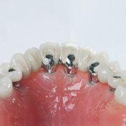 Implantes-atornillados-2-ProtesisSA-Laboratorio-Protesis-Dentales