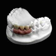 Protesis-fija-sin-metal-3M-Espe-Lava-Zirconio-sobre-implantes-ProtesisSA-Laboratorio-Protesis-Dentales