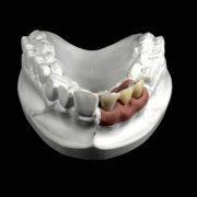 Protesis-fija-sin-metal-3M-Espe-Lava-Zirconio-sobre-implantes-vista-frontal-ProtesisSA-Laboratorio-Protesis-Dentales