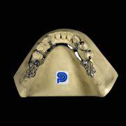 Protesis-removible-esqueletica-Nobilium-con-ganchos-ProtesisSA-Laboratorio-Protesis-Dentales