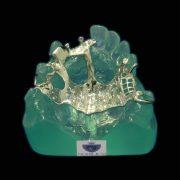 Protesis-removible-esqueletica-Nobilium-resistente-ProtesisSA-Laboratorio-Protesis-Dentales