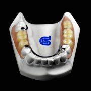 Protesis-removible-esqueletica-Nobilium-vista-invertida-ProtesisSA-Laboratorio-Protesis-Dentales