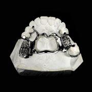 Protesis-removible-esqueletica-Super-Nobilium-vista-tres-cuartos-ProtesisSA-Laboratorio-Protesis-Dentales