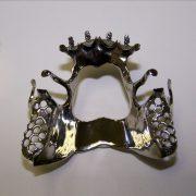 Protesis-removible-esqueletica-Titanio-2-ProtesisSA-Laboratorio-Protesis-Dentales