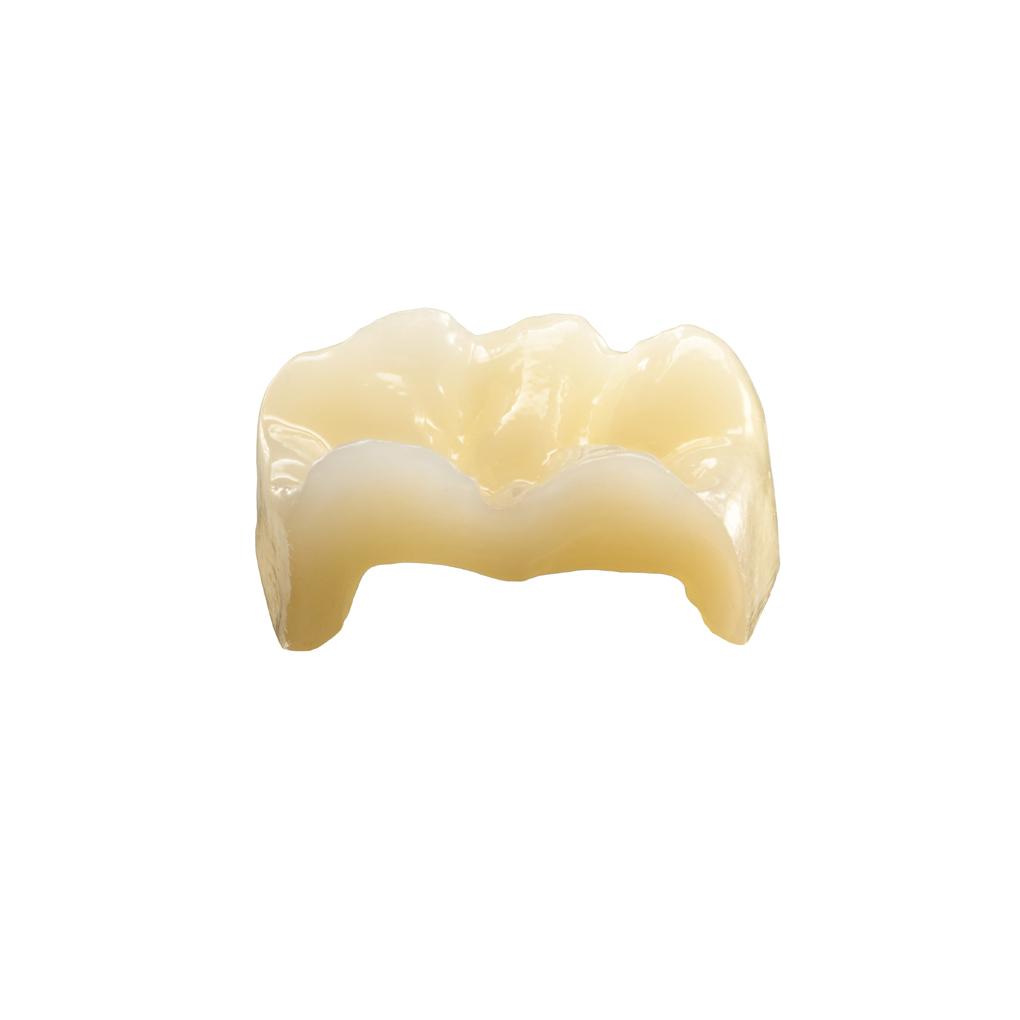 Prótesis Fija Sin Metal - Zirconio Lava Esthetic - Protesis S.A. ' Laboratorio de Prótesis Dentales